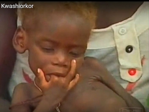 A child with Kwashiorkor looking miserable and having brownish hair color which are signs of Kwashiorkor