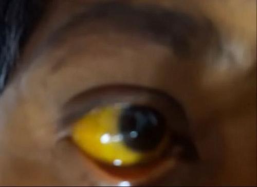 Yellowish eyes are symptoms of Hepatitis A