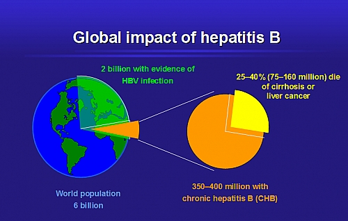 Complications and Impacts of Hepatitis B worldwide