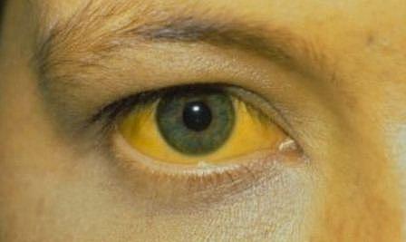 Sudden yellowish eyes or Skin is one of the symptoms of Hepatitis B