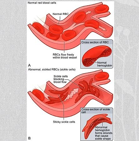 Sickled red blood cells as seen in sickle cell crisis and also Normal red blood cells