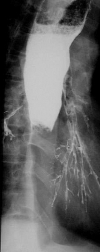 Barium Swallow Test Indications In Diagnosis Of Esophageal And
