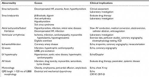 Abnormalities seen on ECG in Heart Failure