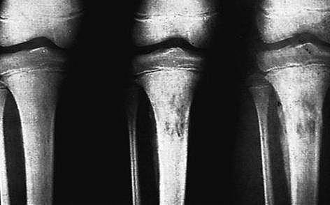 X ray film of Acute Osteomyelitis affecting the Tibia