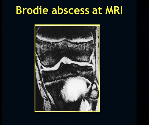 Brodie Abscess seen on MRI scan