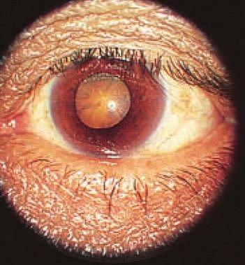 Cataract: A Complication of Diabetes Mellitus