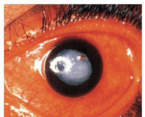 Phacomorphic Glaucoma caused by Cataract: Note the Ciliary Congestion with dilated pupil and intumescent senile cataractous lens