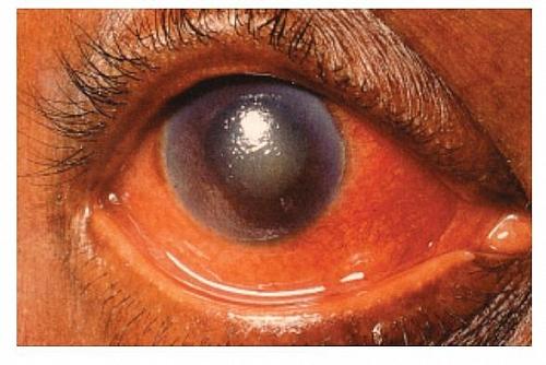 Acute Congestive Glaucoma