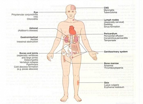 Common Extra-Pulmonary sites for Miliary Tuberculosis