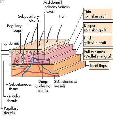 Skin Grafts Types Classification Stages Of Survival And Procedure