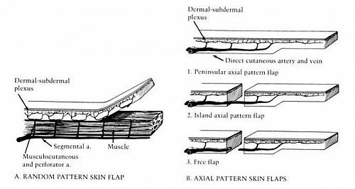Image showing the different types of flaps based on blood supply - Random and Axial Flaps