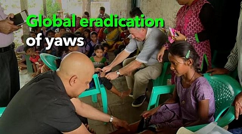 Yaws Global Eradication Programme in India; Yaws eradication is possible because it has been done before