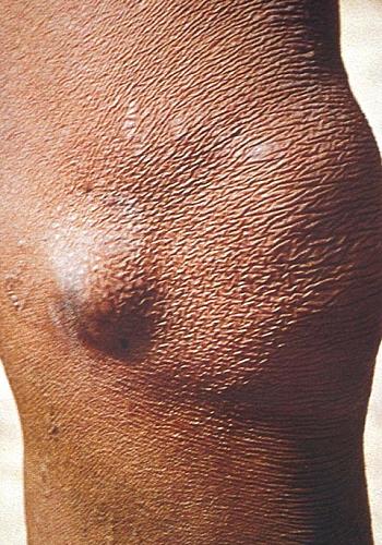 Onchocercomata (SKin nodule of Onchocerciasis)