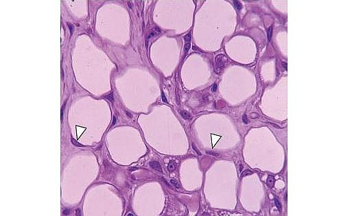 Diagram of White fat (Unilocular adipose tissue); the arrowheads show nuclei of adipocytes (fat cells) compressed against the cell membrane