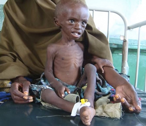 kwashiorkor disease Kwashiorkor [kwahsh″e-or´kor] a syndrome occurring in infants and young children soon after weaning it is due to severe protein deficiency, and the symptoms include edema.