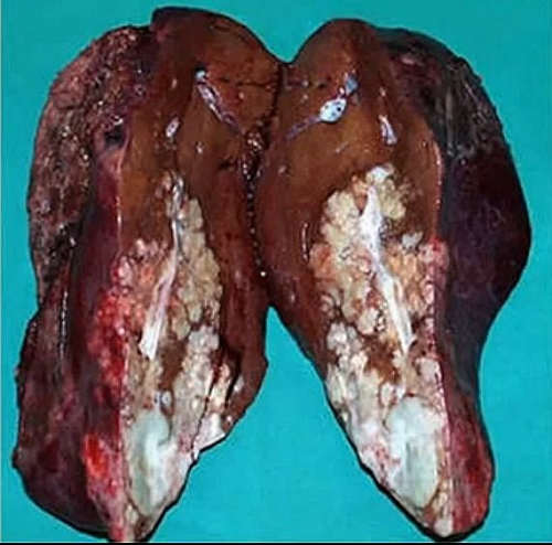 Photo of What is hepatitis C? Symptoms, Cure, Transmission of Hep C