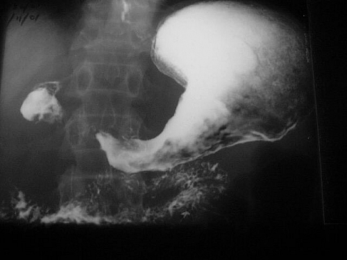 Photo of Diagnosis of Abnormalities seen in Barium Meal/Follow through Test