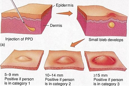 Photo of Tuberculin Skin Test (Positive Mantoux Test) Result, Reading and Interpretation