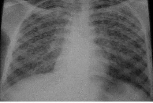 Photo of Miliary Tuberculosis (TB) Symptoms, Causes, Radiology, Diagnosis & Differential Diagnosis