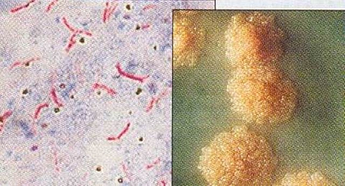 Photo of Mycobacterium tuberculosis Morphology, Characteristics, Acid fast Stain and Culture Media