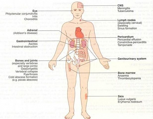 Different Forms And Types Of Tuberculosis Tb Disease And Their