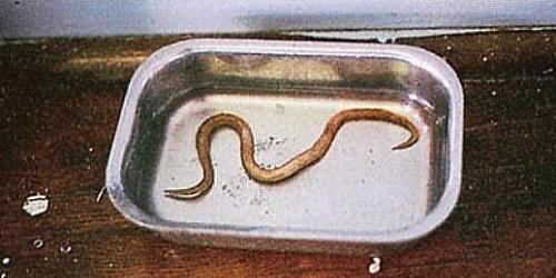 Photo of Ascaris Lumbricoides (Giant Roundworm): Ascaris Life cycle, Anatomy and Morphology of ascaris egg
