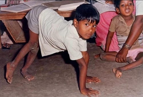 Photo of Polio (Poliomyelitis or Infantile Paralysis) Symptoms, Cause, Transmission, Treatment  and Prevention
