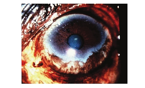 Photo of River Blindness (Onchocerciasis) Life cycle, Symptoms, Diagnosis, and Treatment