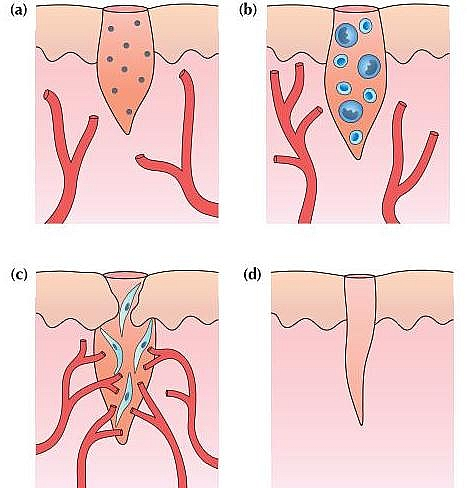 Photo of Wounds: Types, Classification of wounds, Treatment and Wound care