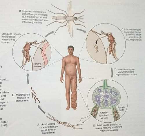 Photo of Elephantiasis and Lymphatic Filariasis: Causes, Symptoms, Treatment and Prevention