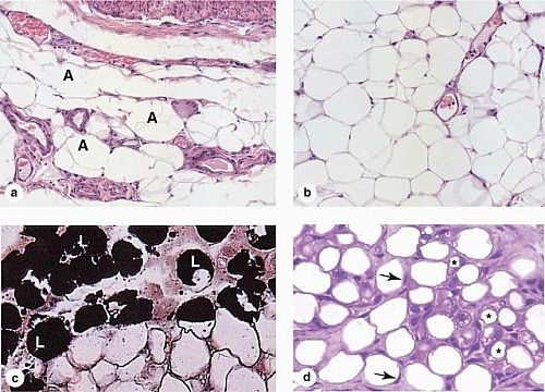 Photo of Adipose Tissue Types, Functions, Structure and Location