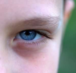 Blue iris genotype